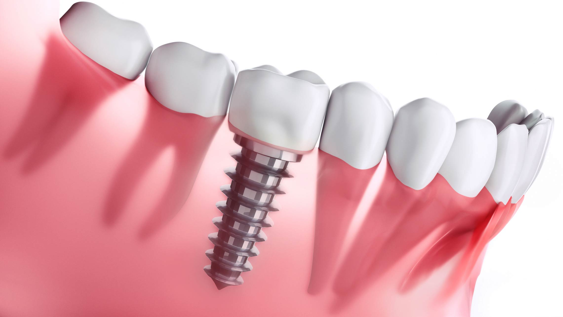 Tratamento de perdas dentárias