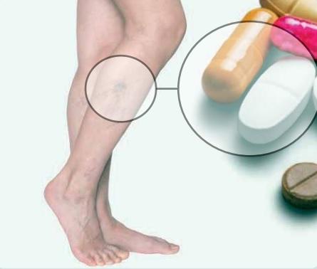 É possível tratar varizes apenas com remédios?