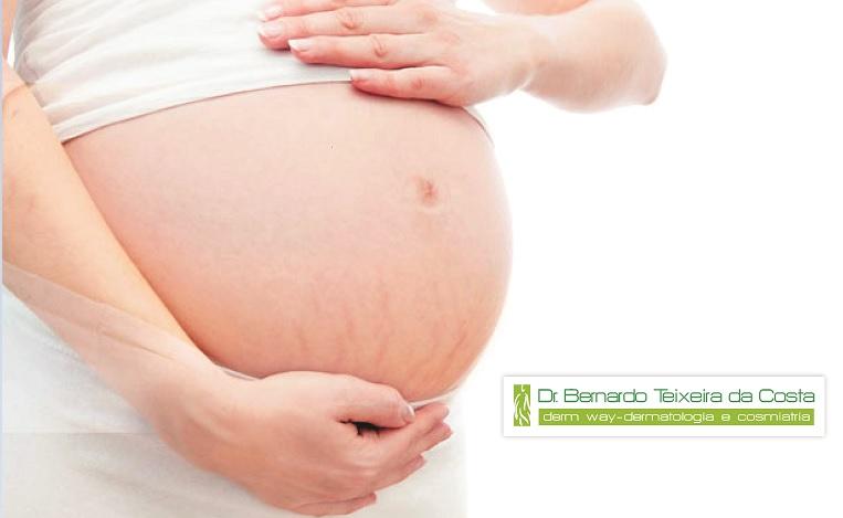 Laser CO2 Fracionado – Aliado no tratamento de estrias pós gravidez